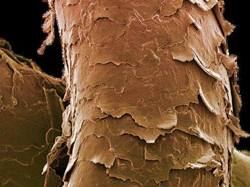 damaged hair under scanning electron microscope