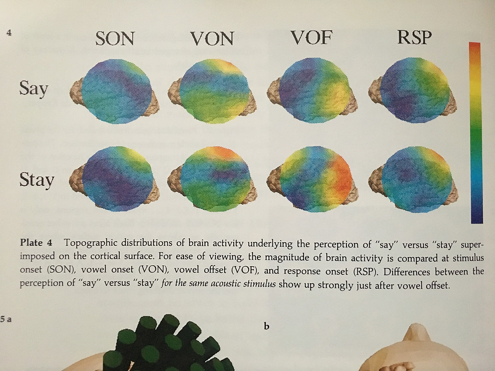 Brain activity during auditory stimulus