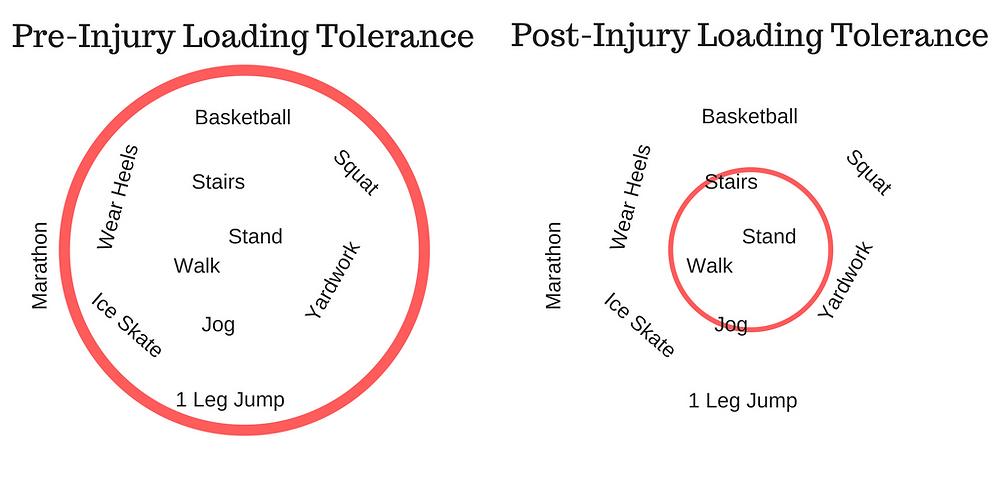 Pre vs. Post Injury Loading Tolerance