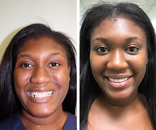 Patient 4 - Smile Makeover.png
