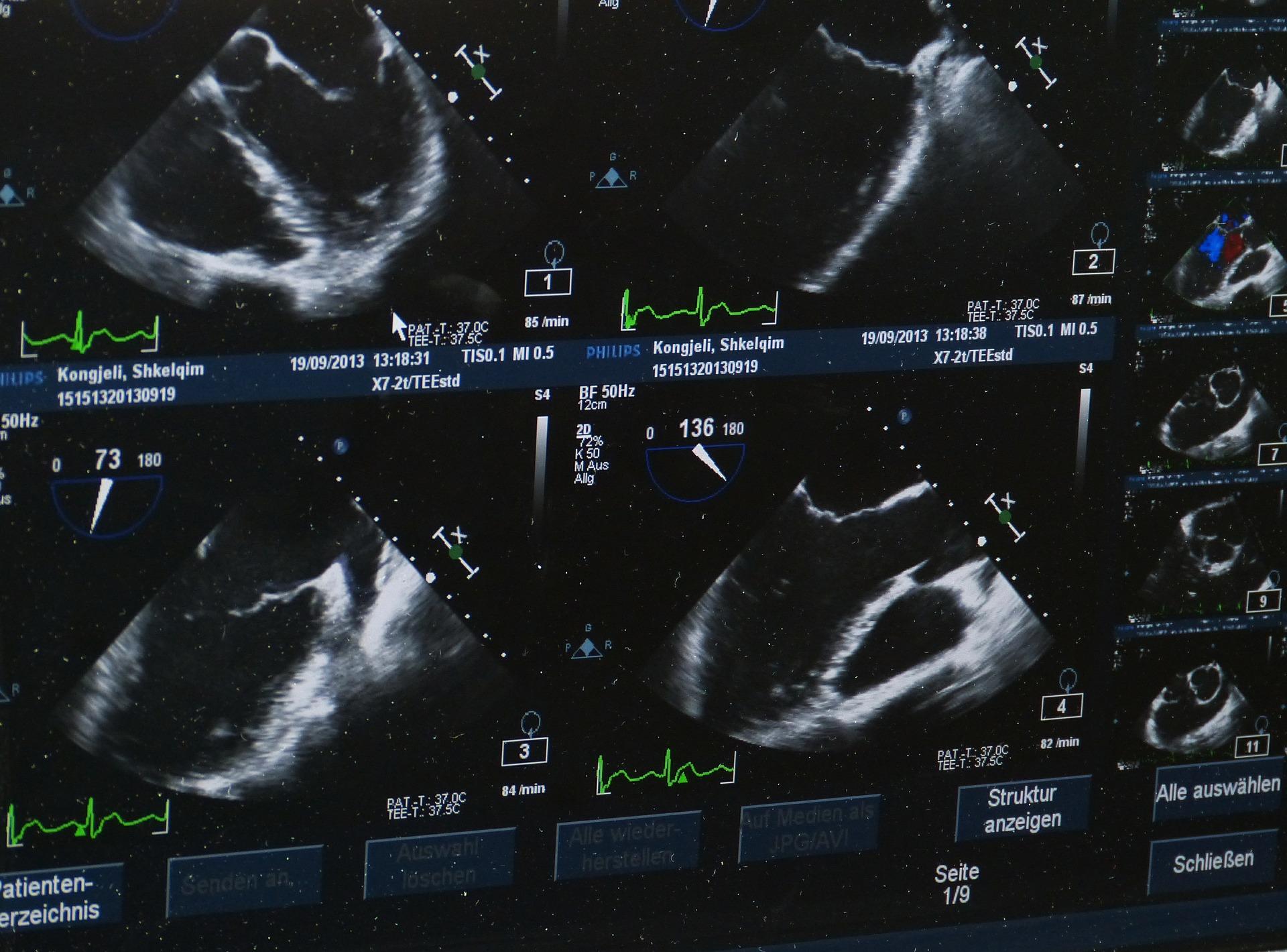 Ultra-sonografias
