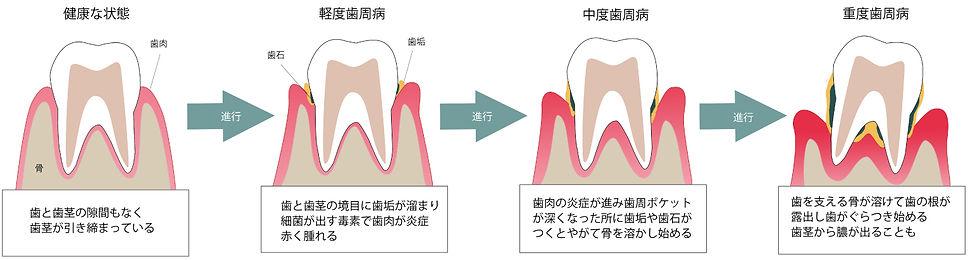歯周病進行-3.jpg