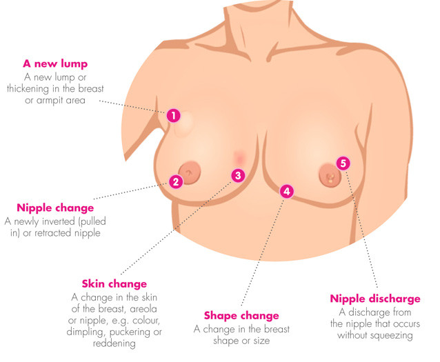 breast-change-diagram-new-resized.jpg