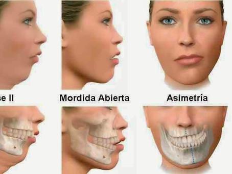 Ortodontia e Cirúrgia              Tratamento combinado para corrigir deformidades faciais.