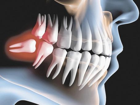 Extração do dente siso: cuidados pós operatório