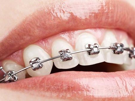 Posso tirar o aparelho dental em casa?