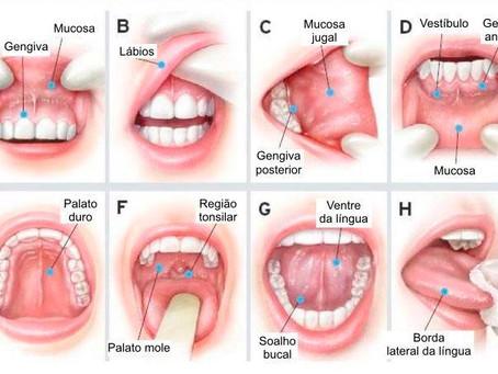 Câncer Bucal: A doença silenciosa