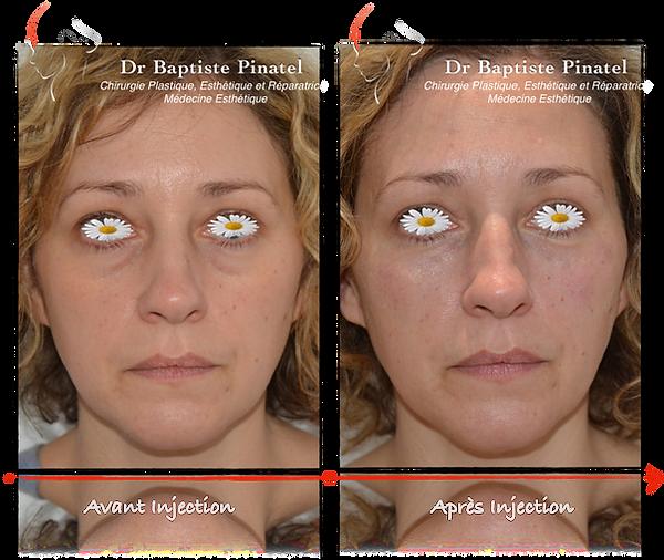 Injection acide hyaluronique Cernes Dr P