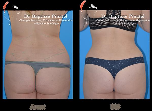 Lifting abdominal et lipoaspiration dos