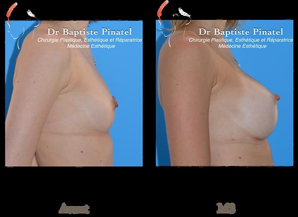Augmentation mammaire Annecy