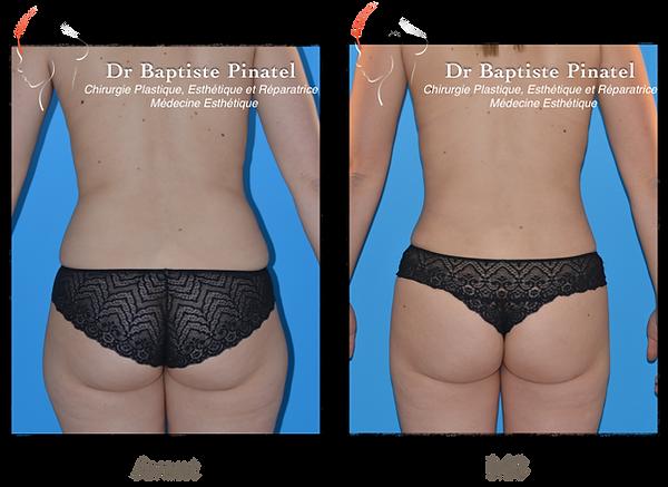 Lipofilling pour asymetrie mammaire