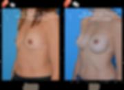 Augmentation mammaire anatomique 290cc