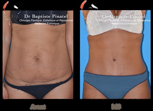 lifting abdominal Dr Pinatel