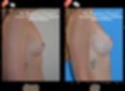 Dr Pinatel Augmentation Mammaire