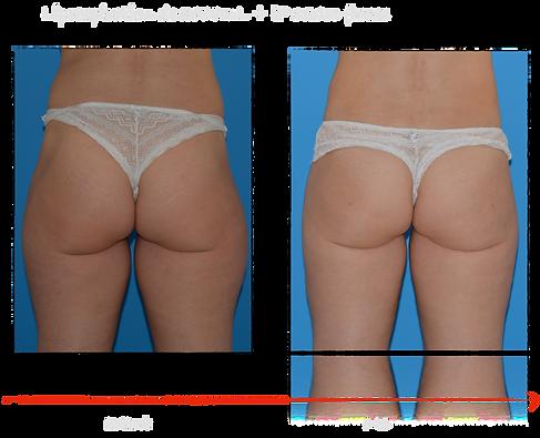 Lipofilling des fesses - Chirurgie esthe