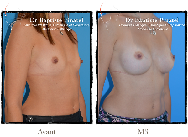 augmentation mammaire anatomique 290cc -