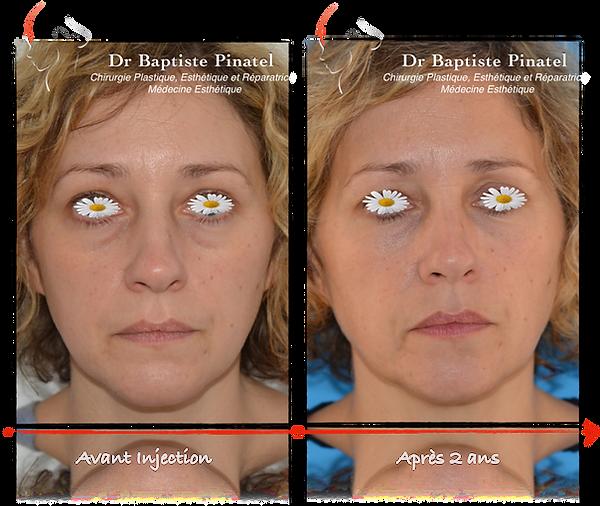 Injection Vallées des larmes - résultats