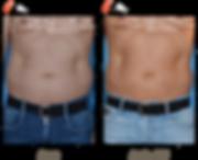 Cryolipolyse abdomen