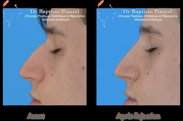 Injection acide hyaluronique Nez - Dr Pi