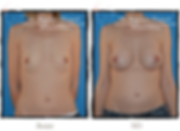Augmentation anatomique Annecy Dr Pinate