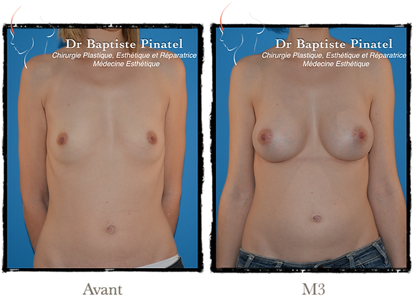 Augmentation anatomique Annecy Dr Pinate