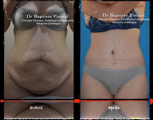 Bodylift inférieur ou abdominoplastie circulaire après perte de poids massive - Dr Pinatel - Photo