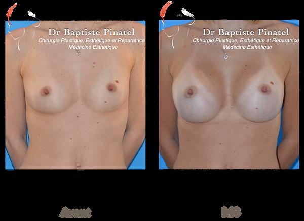Augmentation mammaire anatomique haute S