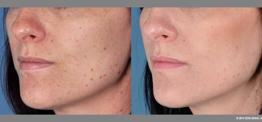 Zo Skincare Before & After