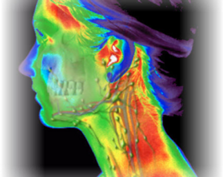 thermography head.png