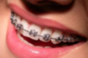 Ortodontia-fixo.jpg
