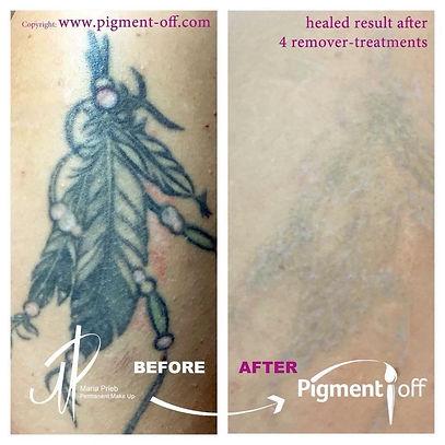 Tattoo verwijderen, pigment verwijderen, correctie tatoeage, Litteken verwijderen, inked by sj