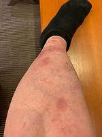 濕疹一星期後.jpg