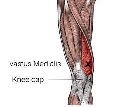 Irish dance knee pain