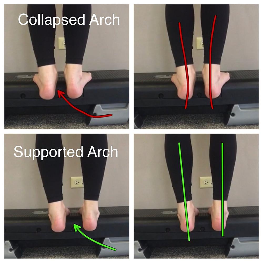 Irish dance strength and conditioning, shin splints, shin pain in Irish dance, Irish dance exercises, injury prevention for Irish dance