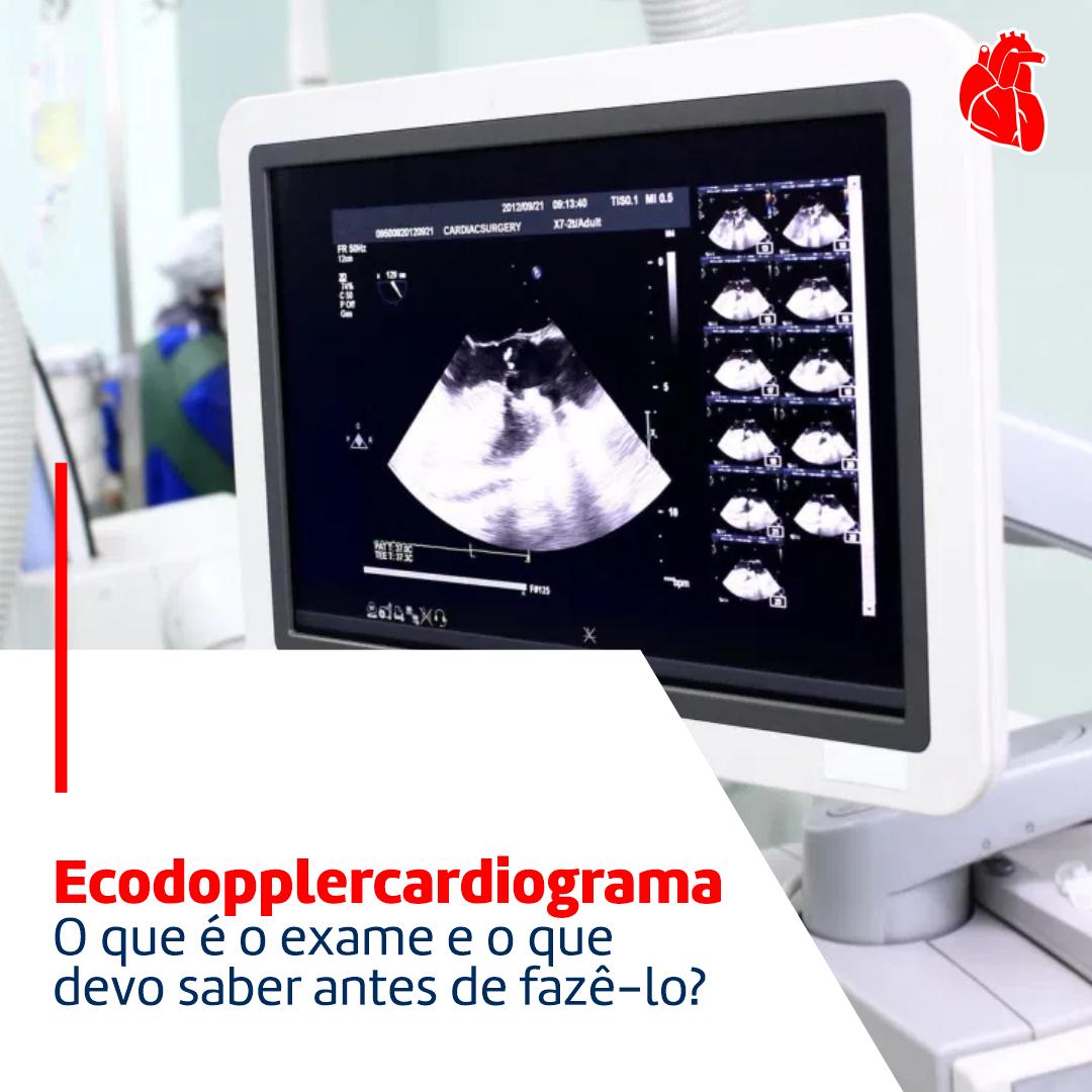 Ecodopplercardiograma