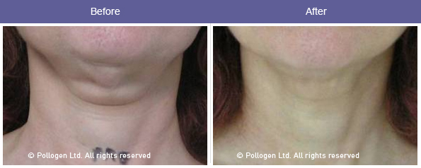 Skin tightening before/after