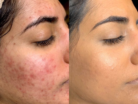 Healthy skin with Colorescience
