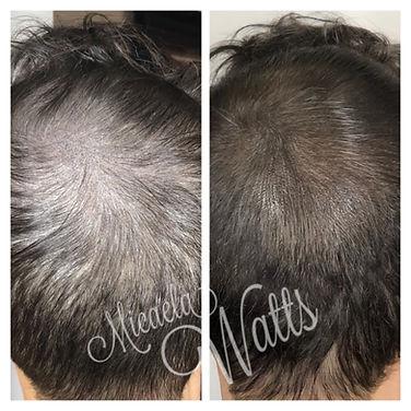 scalp micropigmentaion