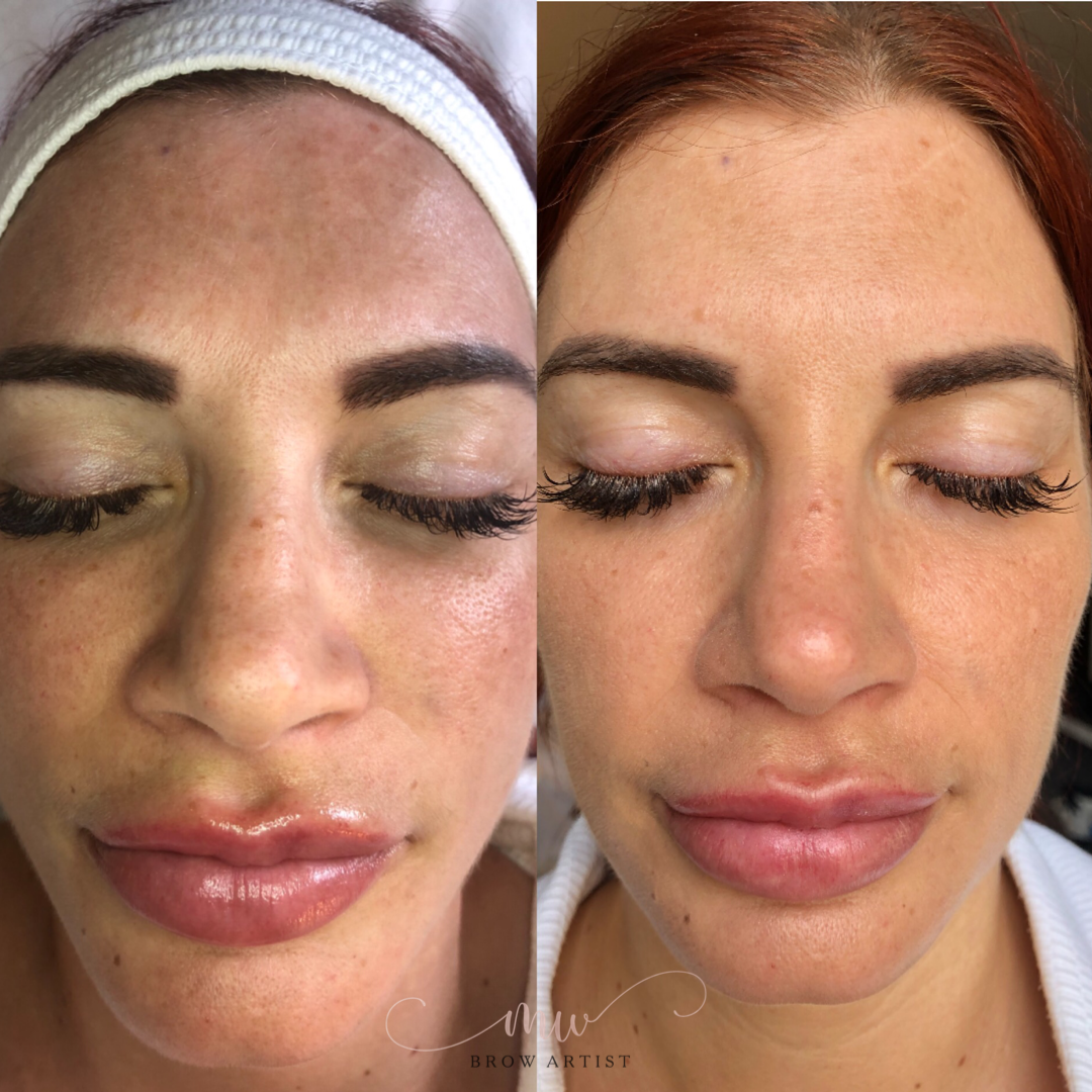 Beauty Glow Treatment