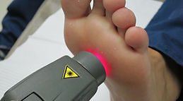 Laser  Foot2.JPG