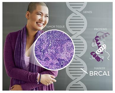 Personalized Medicine IHC and helix pati