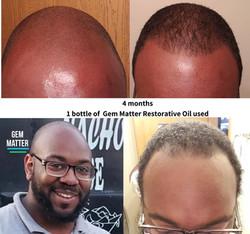 Receding Hairline Restored