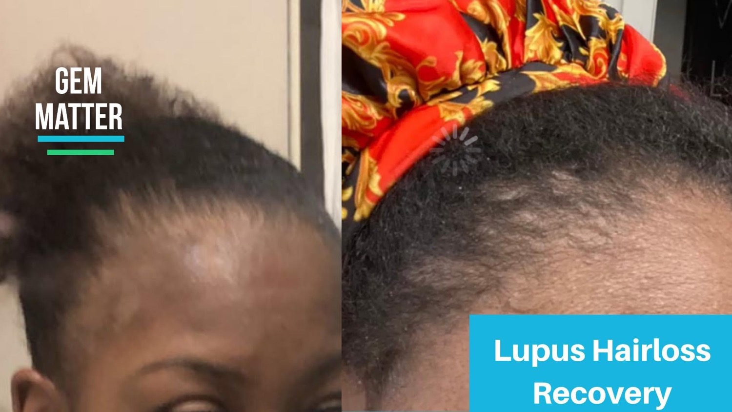 Hair growth after losing hair due to Lup