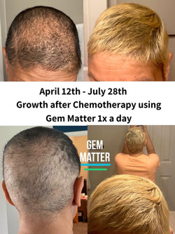 Growth during and after Chemotherapy