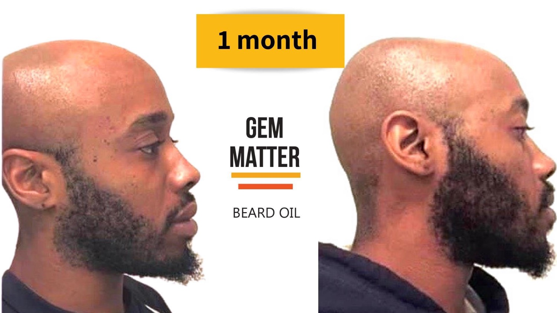 Beard Growth Oil