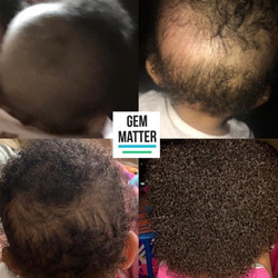 Hair growth on a little one