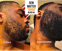 Beard Growth Oil Results