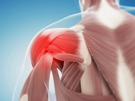 What is a Rotator Cuff Injury?