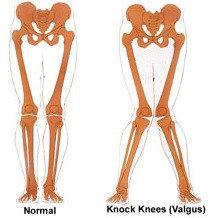 Knee valgus and flat feet