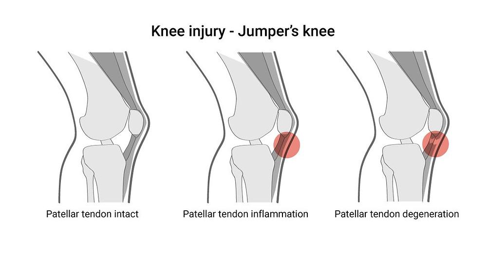 Knee Injury - Jumper's Knee